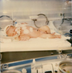 """This photo was taken in 1985 of a baby boy who was diagnosed with a meningitis GBS infection during his first day of life. This was before antibiotics were given during labor for GBS. According to his mom, this baby was a """"fighter"""" and miraculously survived. He was diagnosed with a seizure disorder at the age of 11."""