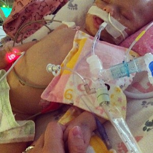 Olive was born in a birth center. Her Vitamin K shot was unintentionally omitted at birth, and as a result of Vitamin K deficiency, she had a severe brain bleed at 2 months old. Photos and story in this blog post used with permission from Olive's parents.