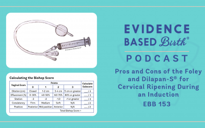 EBB 153 – Pros and Cons of the Foley and Dilapan-S® for Cervical Ripening During an Induction